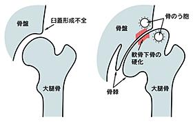 変形性膝関節症の関節