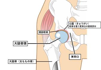 臼蓋と骨頭