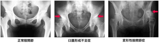 股関節のX線写真