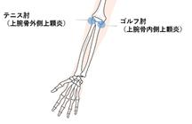ゴルフ肘・テニス肘の発症部位