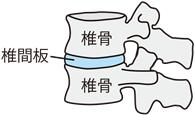 椎骨と椎間板