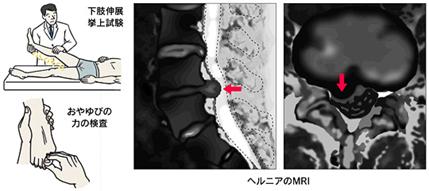 腰椎椎間板ヘルニアの検査
