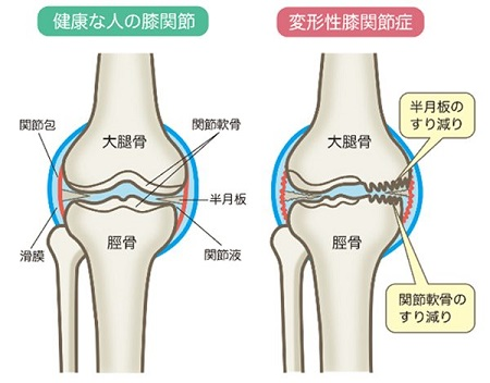 変形性膝関節症