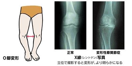 変形性膝関節症のO脚変形・X線写真